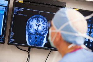 Лечение эпилепсии в Израиле