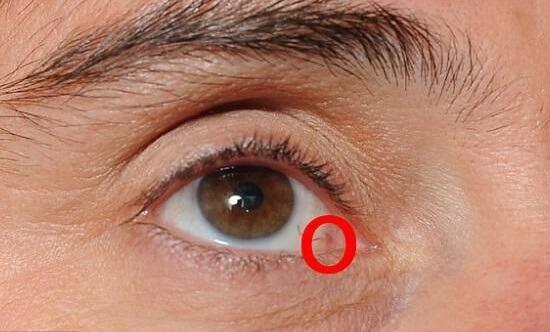 рак глазницы