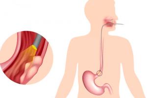 рак пищевода