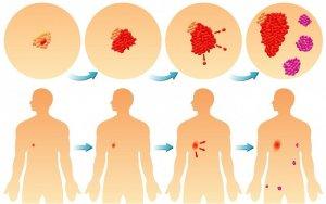 4 стадия рака