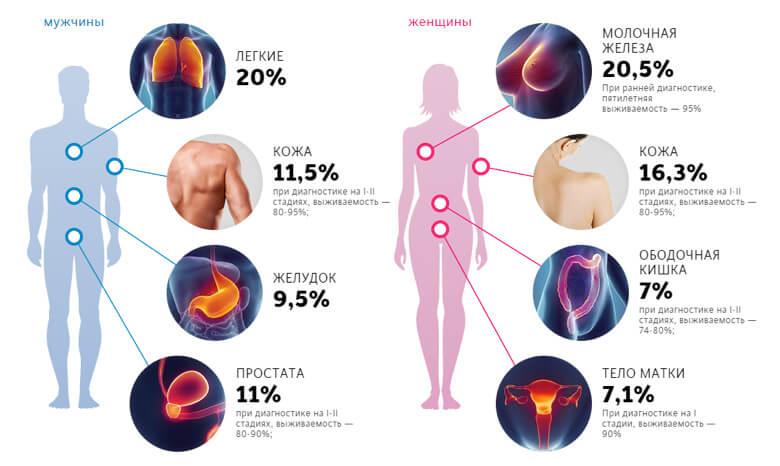 Стоимость лечения онкологии в Израиле