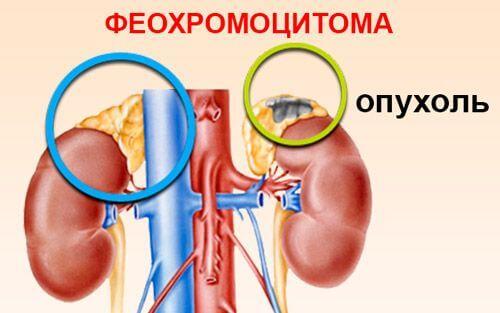 феохромоцитома симптомы и лечение