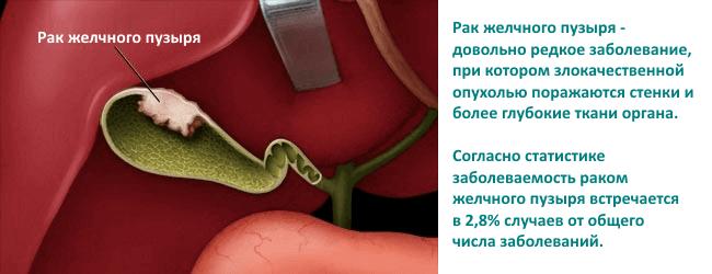 рак желчного пузыря отзывы