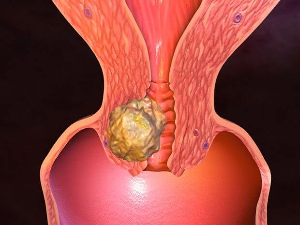 симптомы рака влагалища