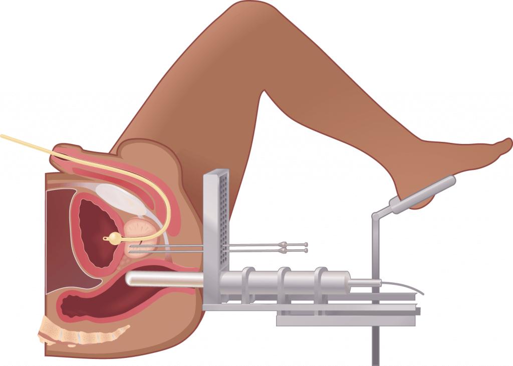 гинекологическая hdr-брахитерапия