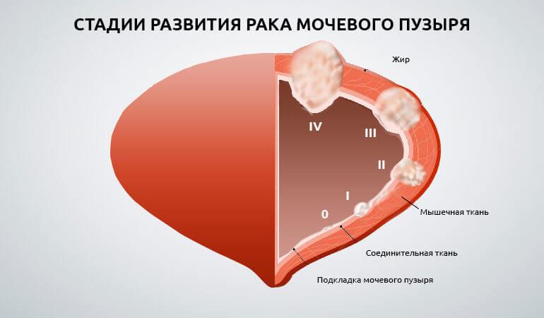 бцж терапия при раке мочевого пузыря