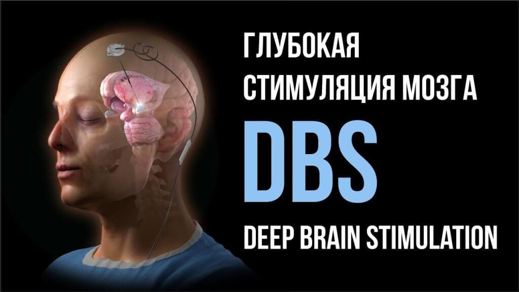 Глубокая стимуляция мозга в Израиле