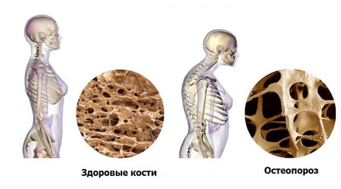 остеопороз у женщины с возрастом